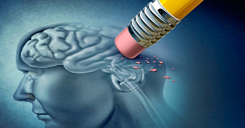 10 primeros síntomas de Alzheimer a los que se le debe prestar atención.