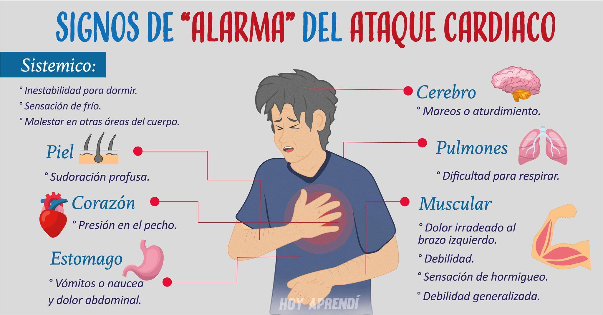 sintomas ataque cardiaco