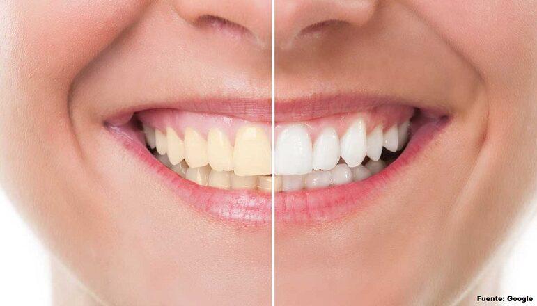 Método natural para blanquear dientes en casa